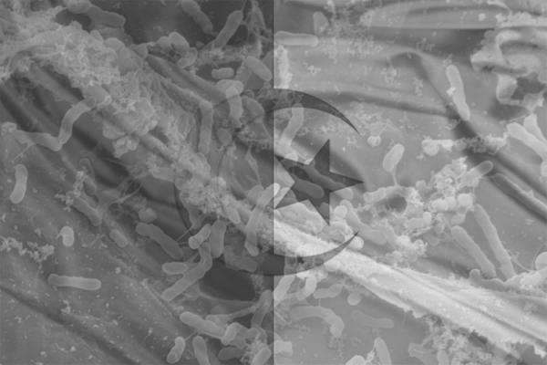 وباء الكوليرا… يفضح سياسة الصيد في المياه العكرة